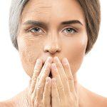 טיפול והעלמת קמטי הבעה